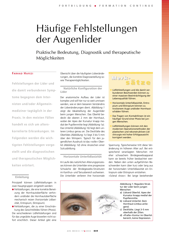 Ziemlich Auge Anatomie Limbus Ideen - Anatomie Von Menschlichen ...
