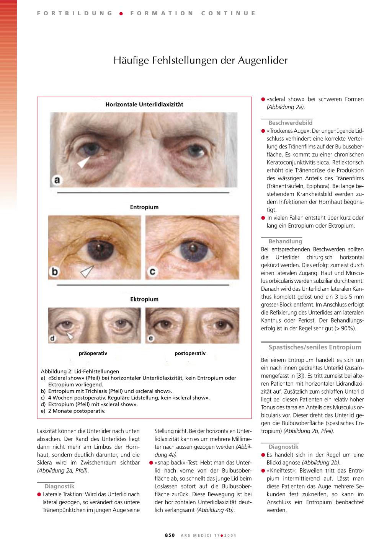 Nett Anatomie Der Augenlider Fotos - Anatomie Von Menschlichen ...