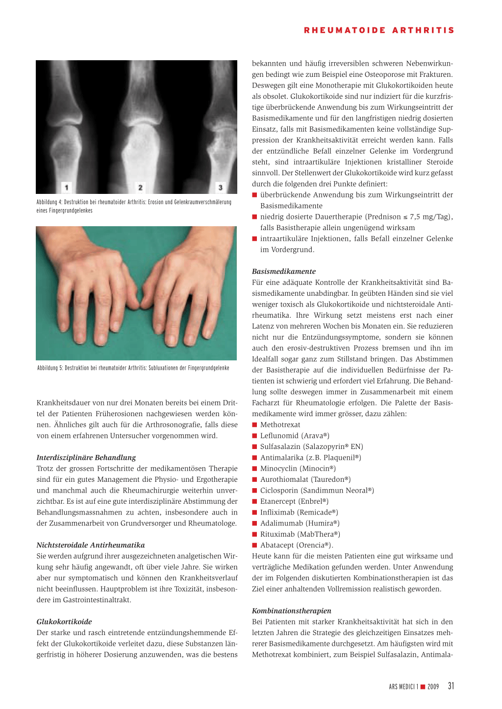 Datierung mit rheumatoider Arthritis