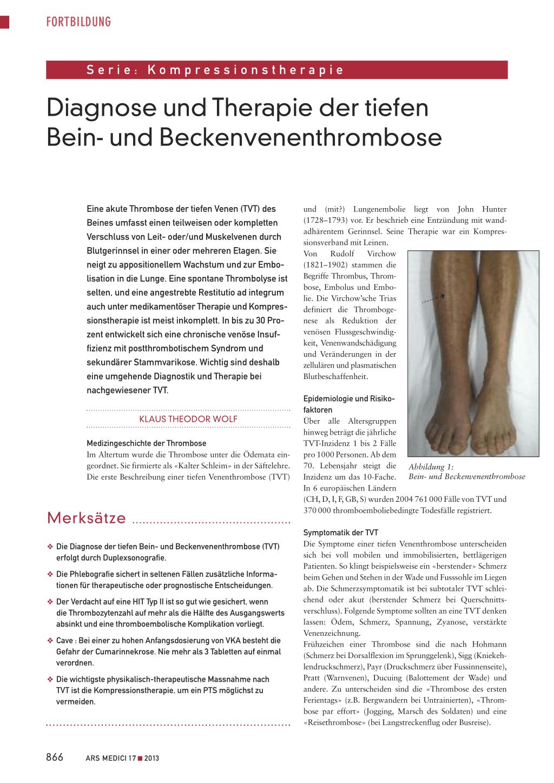 Diagnose und Therapie der tiefen Bein- und Beckenvenenthrombose ...