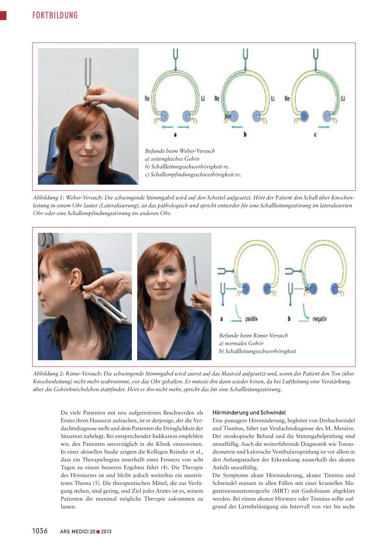Nett Mastoidknochen Ohr Fotos - Menschliche Anatomie Bilder ...