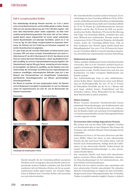 Unspezifische Bauchbeschwerden Rosenfluhch