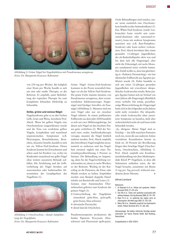 Nagelmykosen und farbige Nägel – Rosenfluh.ch