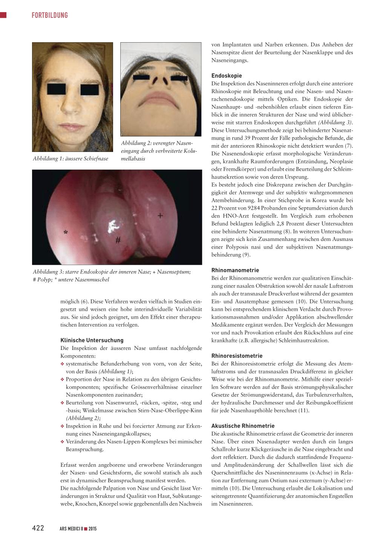 Behinderte Nasenatmung – Rosenfluh.ch