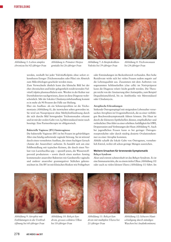Klitoris juckt