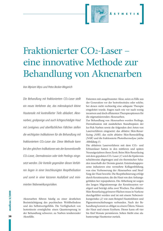fraktionierter laser erfahrung
