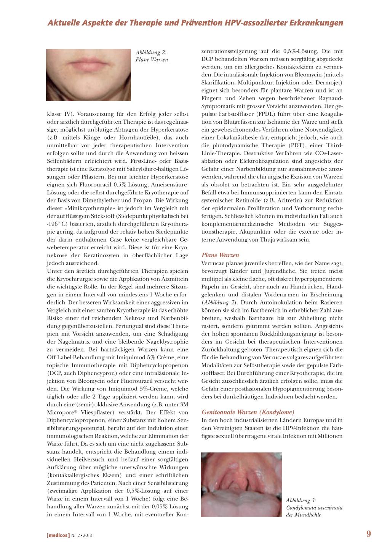 resorcinol condyloma az emberi papillomavírus szerepe férfiaknál