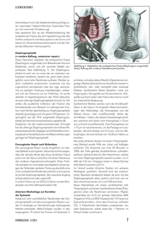 Deszensuschirurgie – Rosenfluh.ch
