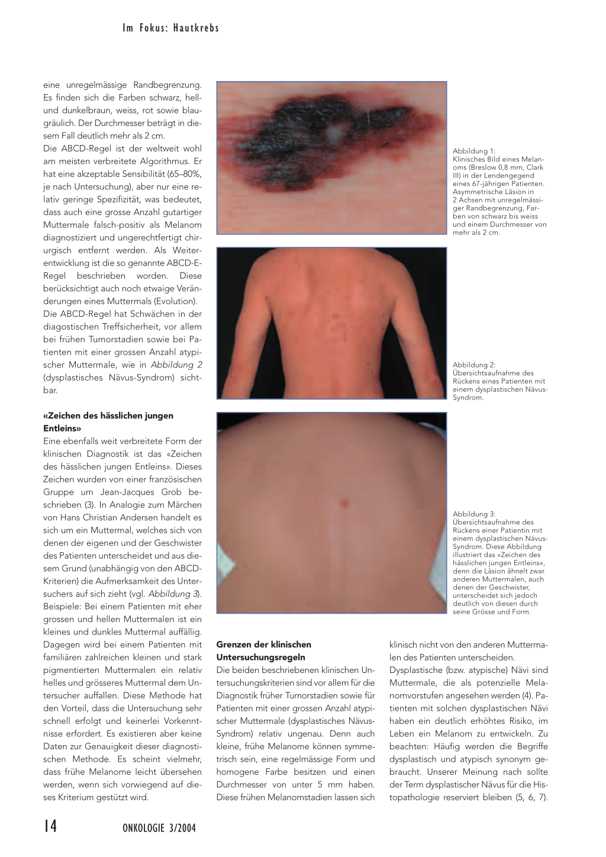 malignes melanom stadien
