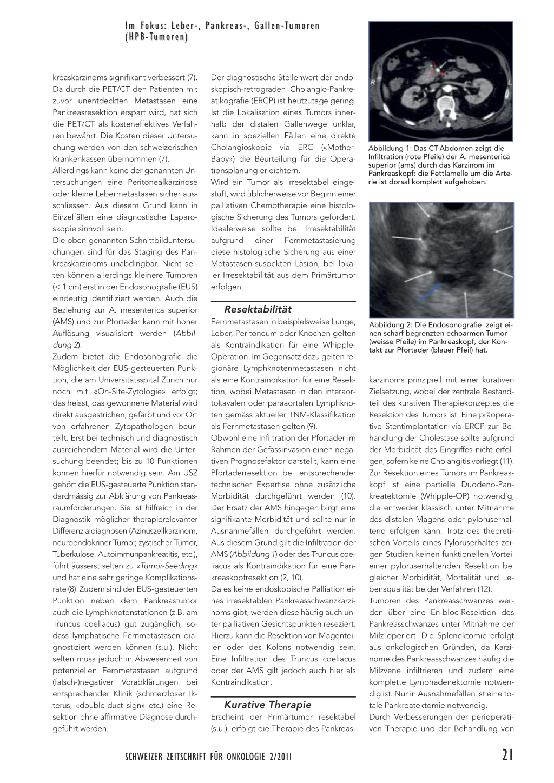Das Pankreaskarzinom – Rosenfluh.ch