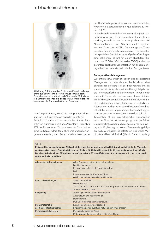 Hoher 19,9 Tumormarker und Gewichtsverlust